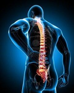 Artritis Reumatoide 1